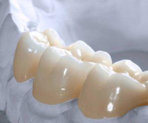 Có bao nhiêu loại răng sứ
