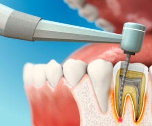Chữa tủy răng là nỗ lực cứu giữ răng tự nhiên
