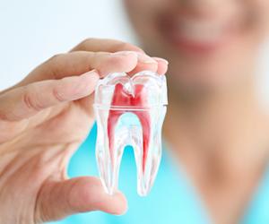 Tại sao cần phải chữa tủy răng